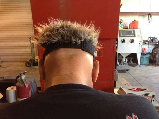 Have Melanoma Cancer-dicktator-back-head.jpg